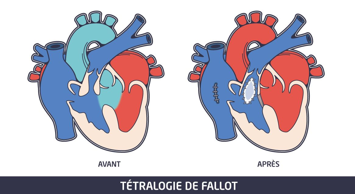 Malformation cardiaque - Fallot