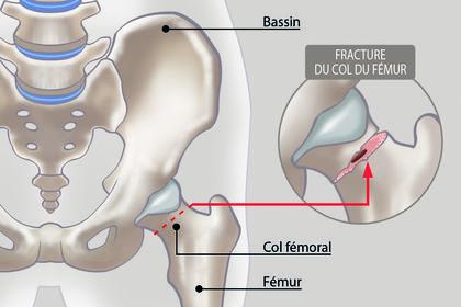 Dessin médical / Fracture du col du fémur