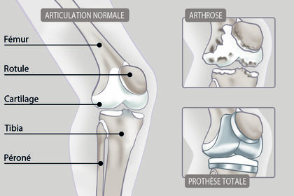 Dessin médical / arthrose du genou