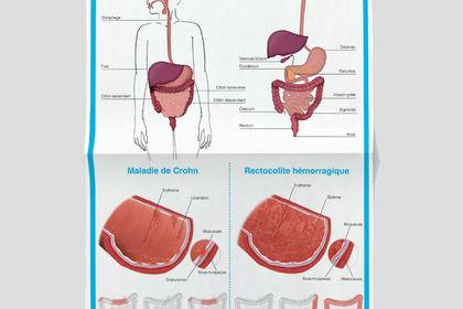 Affiche maladies de l'intestin
